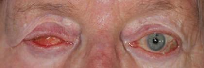 prothese-oculaire-antoinette-avant